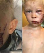 Heroik, Bocah Berusia 6 Tahun Dapatkan 90 Jahitan Usai Selamatkan Nyawa Sang Adik!