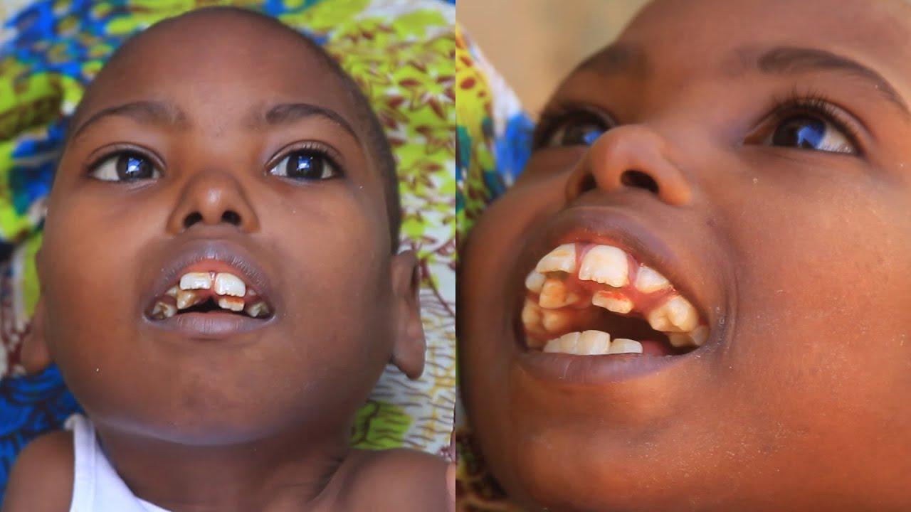 Bocah dengan 70 Gigi: Sulit Makan dan Susah Menutup Mulut