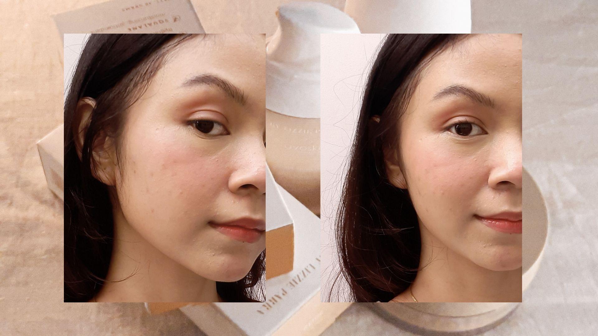 Review BLP x Avoskin on Amira Paramesti's skin