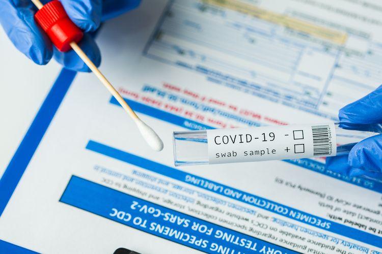 Pria Bercadar Coba Kelabui Petugas Bandara Pakai Hasil PCR Palsu, Kena Pergok Pramugari