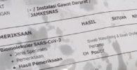 Surat PCR Positif Covid-19 Jadi Bungkus Gorengan, Kini Diselidiki Polisi