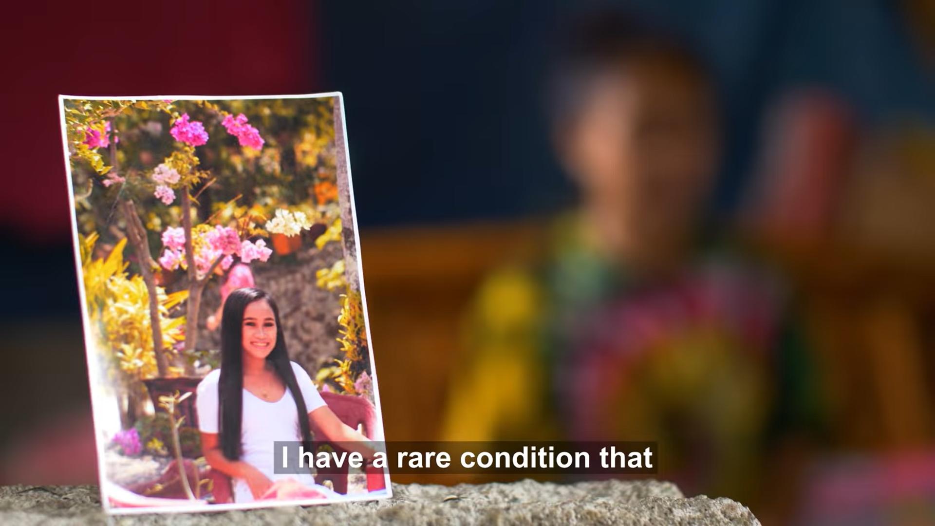 Penyakit Langka Jadi Alasan Wajah Gadis Berusia 16 Tahun Terlihat 'Tua'